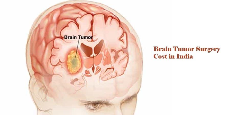 brainTumor Surgery Cost India